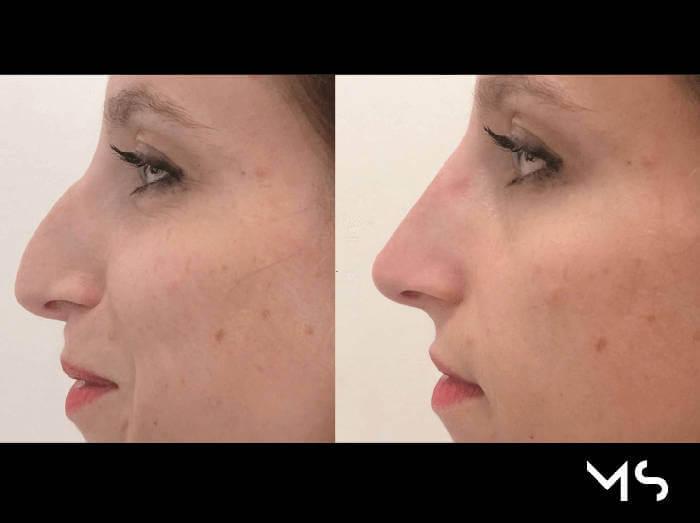 Correggere la forma del naso con il rinofiller Padova