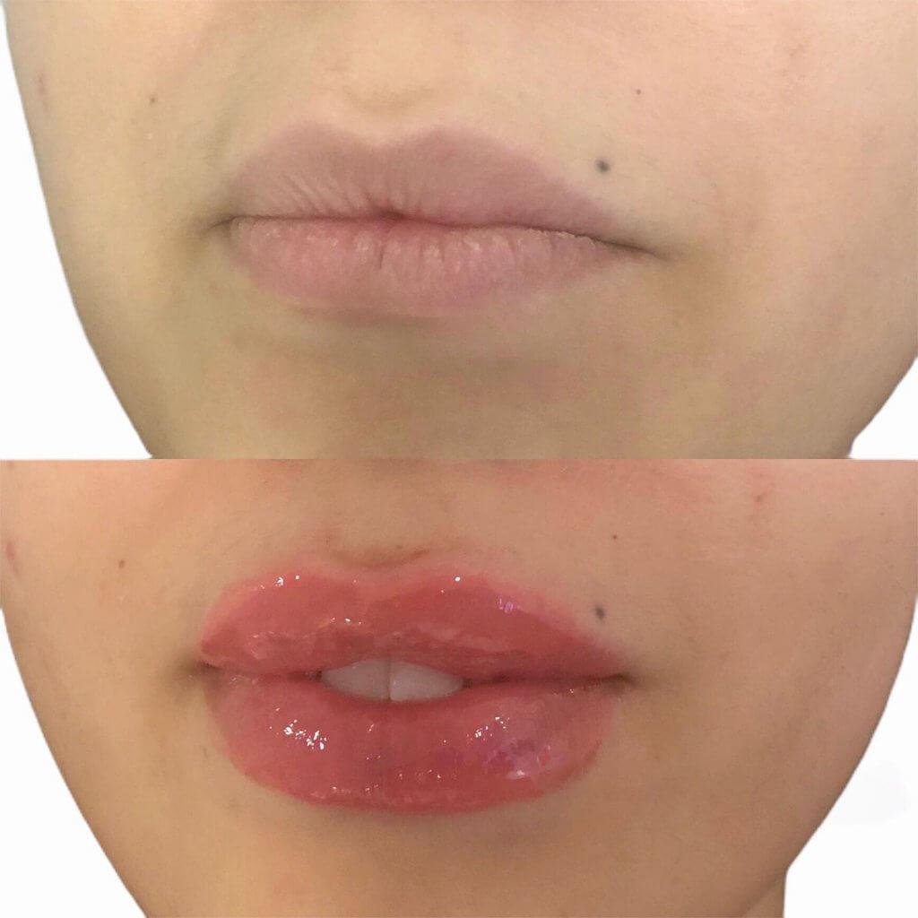 russian lips filler