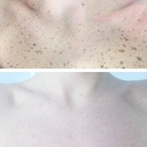 iperpigmentazione primadopo trattamento