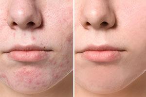 macchie acne primadopo trattamento